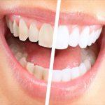 Tanden bleken amsterdam